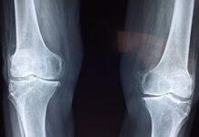 poradnia urazowo ortopedyczna